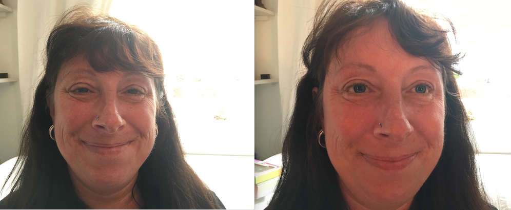 Reiki_Before_After_Photos